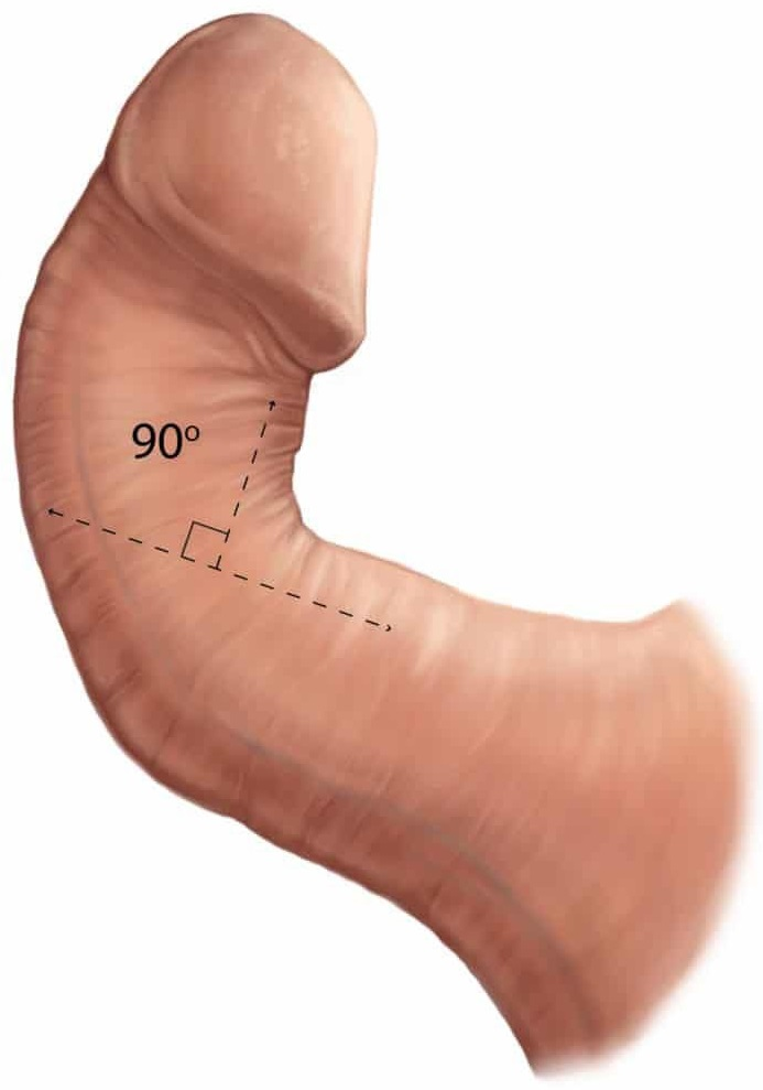 Кривой пенис