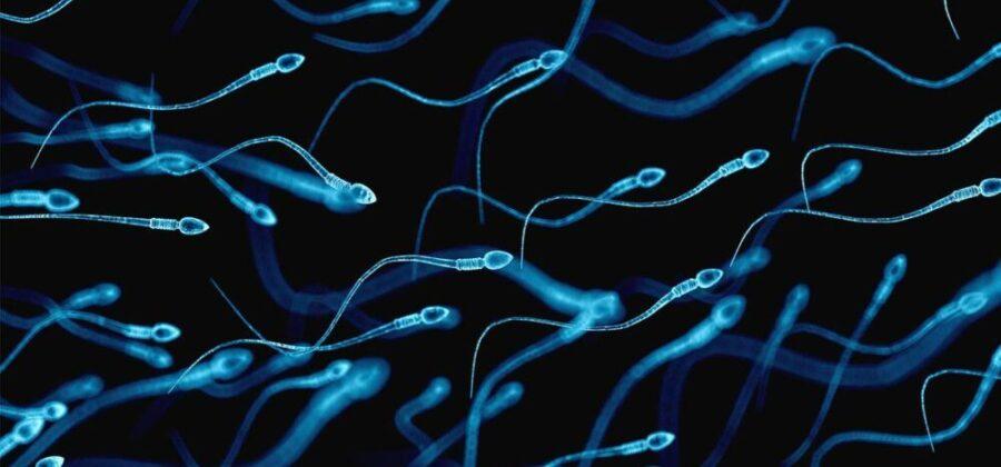 Спермограмма: как подготовиться к анализу