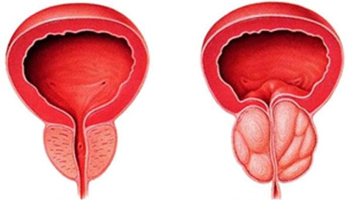 Нормальная и воспаленная простата соответственно
