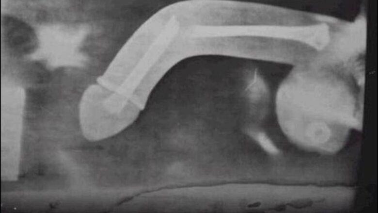 Рентген поврежденного члена