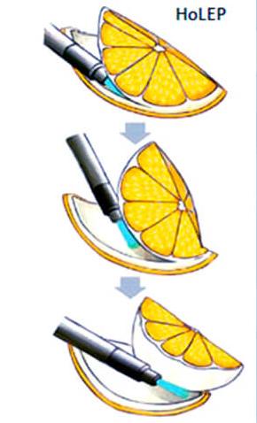 Схематичное изображение операции