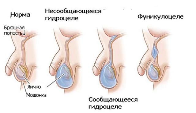 Осложнения при массаже