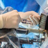 Что такое брахитерапия?