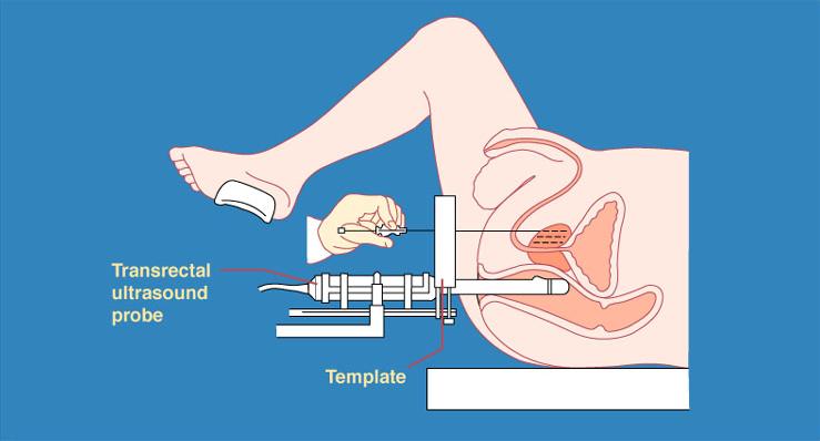 Брахитерапии схема