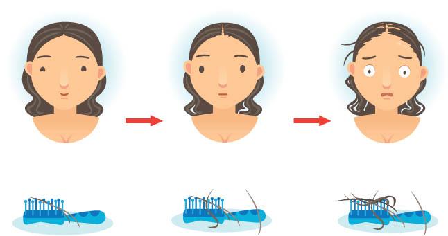миноксидил для востановления волос